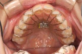 歯にプレート装置を装着