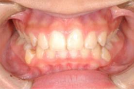 ボタンの装置で並べる前歯