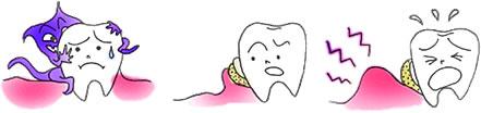 なぜ歯槽膿漏になるの