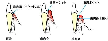 2.歯周ポケット検査