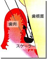 2.歯茎の奥に入り込んだ歯石取り(SRP・スケーリングルートプレーニング)