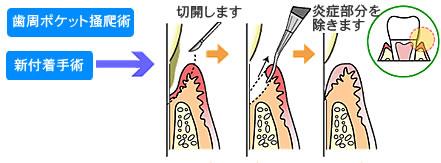 3.歯周外科処置