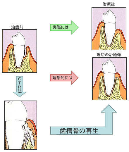 GTR法(Guided Tissue Regeneration)