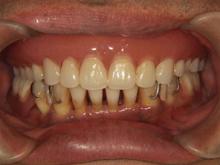 5/8 現在 パーフェクトペリオによる殺菌+歯石除去(2回目)終了後1