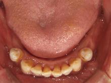 5/8 現在 パーフェクトペリオによる殺菌+歯石除去(2回目)終了後2