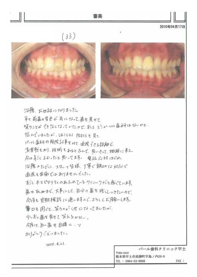【審美】患者様の声