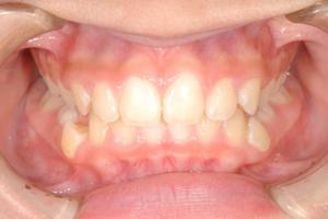 固定式のボタンの装置で前歯を並べます。