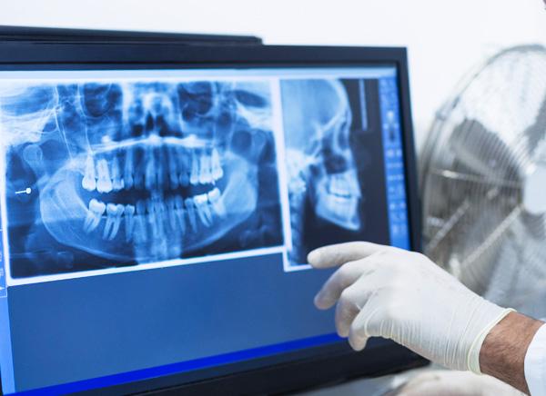 デジタルデータを活用しながら治療する衛生士